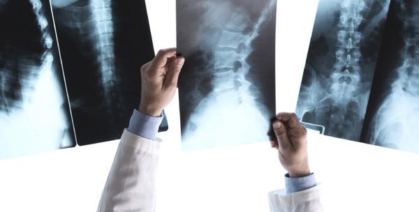 Curso de Radiologia Profissional: O Que Você Vai Aprender e Onde Fazer
